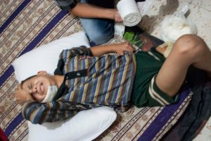 Malek Seylu, 10, winces in pain as an unofficial medic wraps his wound. Seylu was hit by shells near his home in Idlib, Syria.